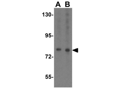 Anti-SKI antibody