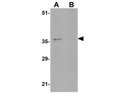 Anti-PA1 antibody