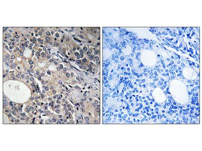 Anti-RPL17 antibody