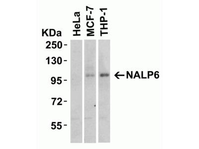 Anti-NALP6 antibody