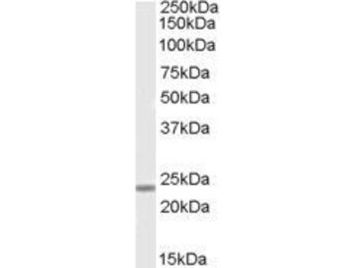 Anti-SOX15 antibody, Internal