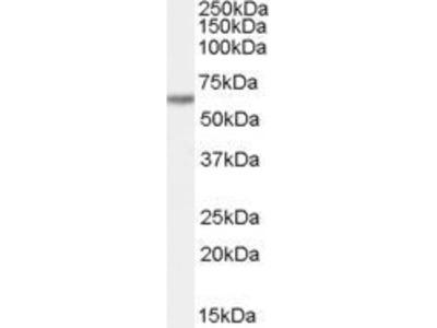 Anti-FAM130A1 antibody, Internal