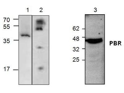 Anti-PBR antibody