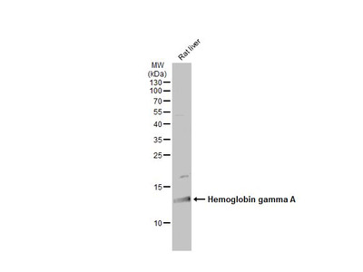 Anti-Hemoglobin gamma A antibody