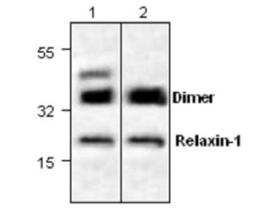 Anti-Relaxin 1 antibody