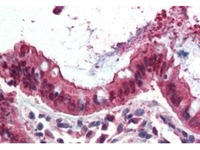 Anti-Ezrin antibody, Internal