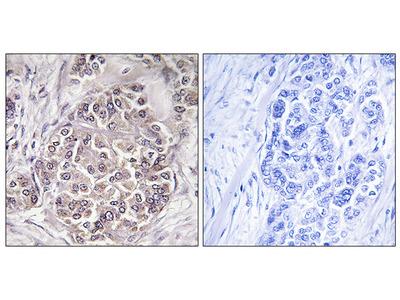 Anti-PEX1 antibody