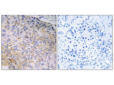 Anti-NOX3 antibody