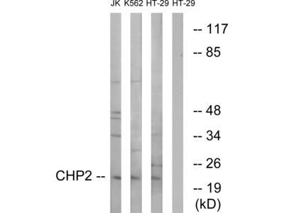 Anti-CHP2 antibody