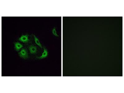 Anti-OR4P4 antibody