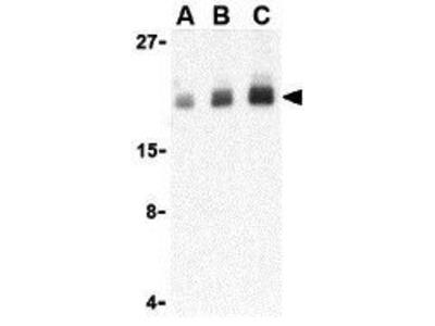 Anti-PTRH2 antibody