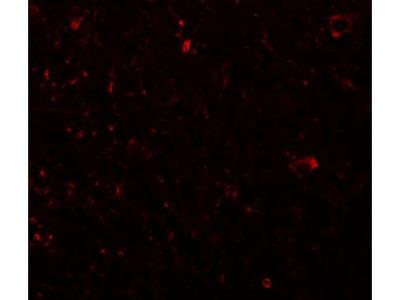 Anti-PLEKHM3 antibody