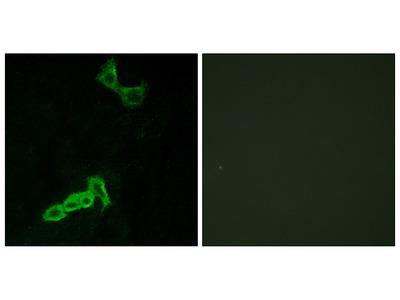 Anti-GPR137C antibody