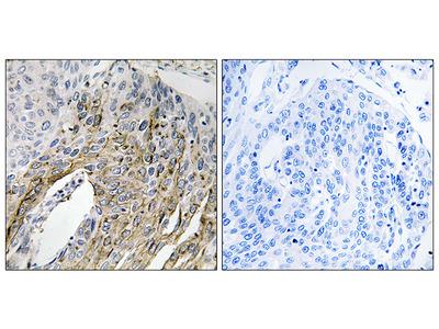 Anti-LONP2 antibody