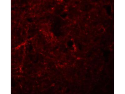Anti-NLRP7 antibody