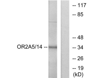 Anti-OR2A5 + OR2A14 antibody