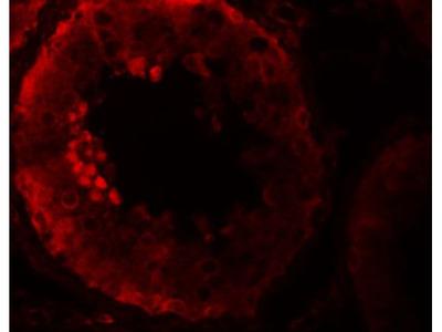 Anti-NALP9 antibody