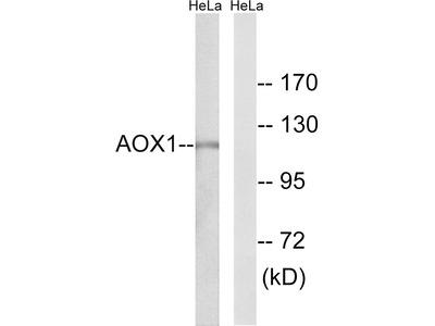 Anti-AOX1 antibody