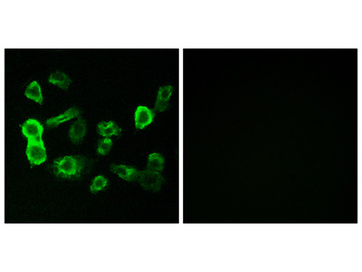 Anti-OR5P2 antibody