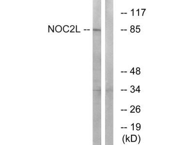 Anti-NOC2L antibody