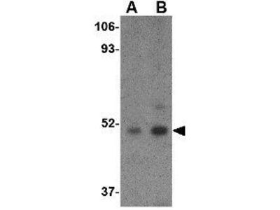 Anti-Carabin antibody
