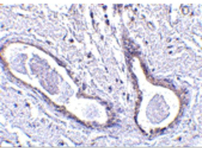Anti-CCDC98 antibody
