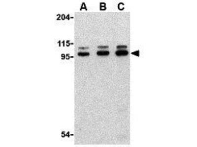 Anti-TLR6 antibody