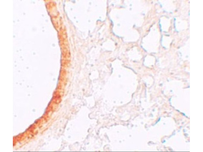 Anti-ZIP3 antibody