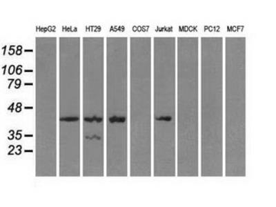 Anti-PKA I alpha reg antibody [6C7]