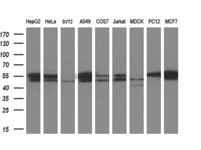 Anti-beta Tubulin 3/ Tuj1 antibody [5H2]