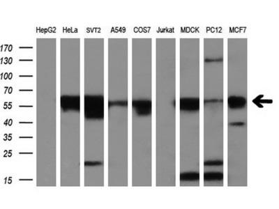 Anti-GLUT5 antibody [14C8]