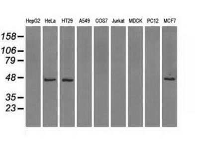Anti-IDH1 antibody [2H9]