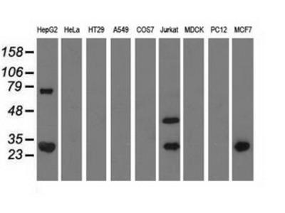 Anti-QPRT antibody [4B4]