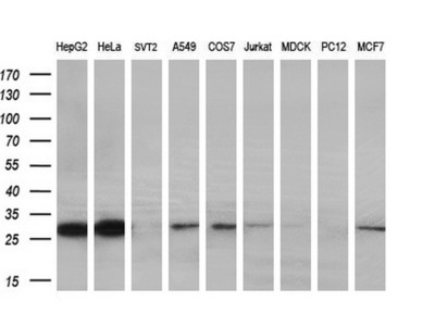 Anti-PYCRL antibody [2E10]