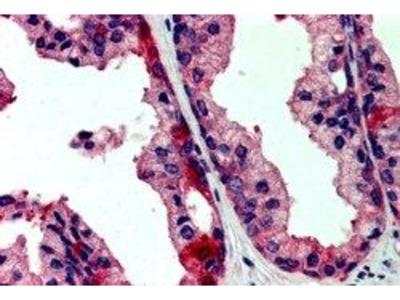 Anti-JIK antibody, Internal