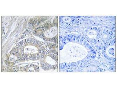 Anti-GPRIN2 antibody