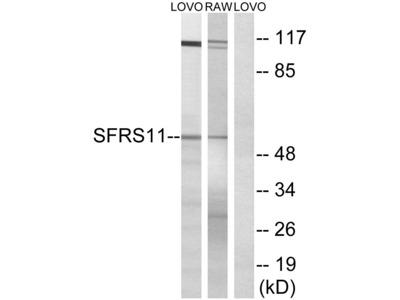 Anti-SFRS11 antibody