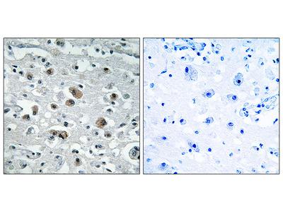 Anti-GASP1 antibody
