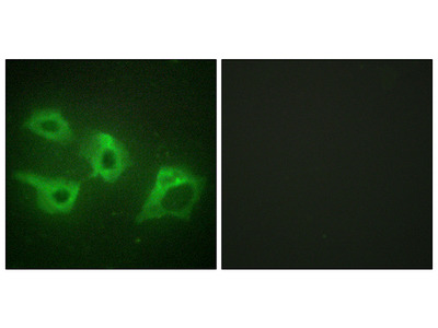 Anti-Casein Kinase 1 alpha antibody