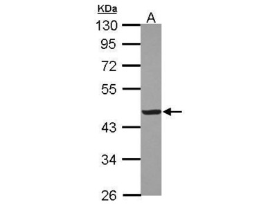 Anti-Creatine kinase (muscle) antibody [N1C3]