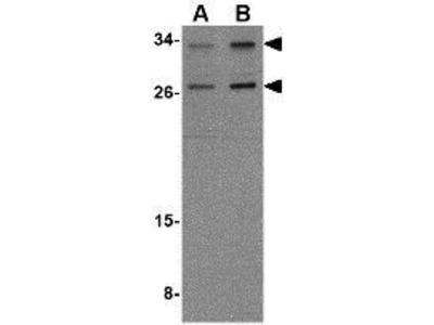 Anti-NIPSNAP3A antibody