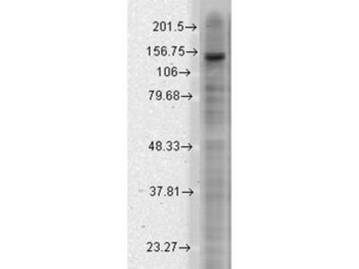 Anti-KCNT2 antibody [S11-33]
