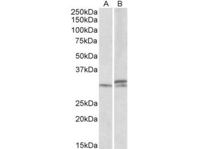 Anti-HOXA9 antibody, Internal