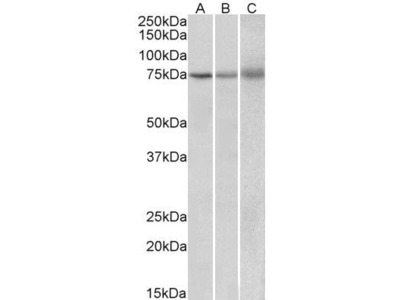 Anti-KLHL6 antibody, Internal