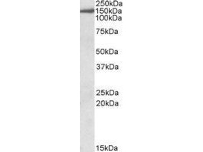Anti-EPB41L3 antibody, C-term