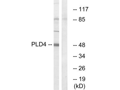 Anti-PLD4 antibody