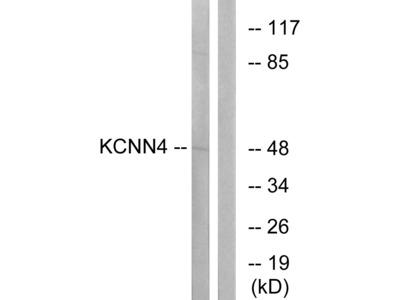 Anti-KCNN4 antibody