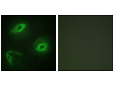 Anti-LATH antibody