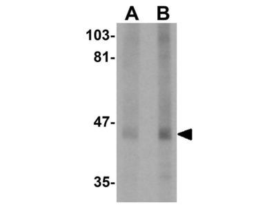 Anti-CKIP1 antibody