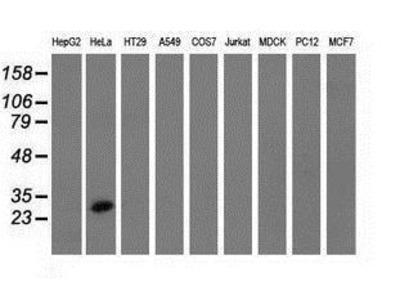 Anti-GSTT2 antibody [4F9]